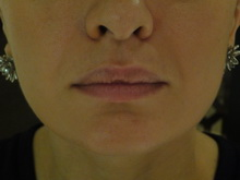 Dermal Fillers - Skin Temple